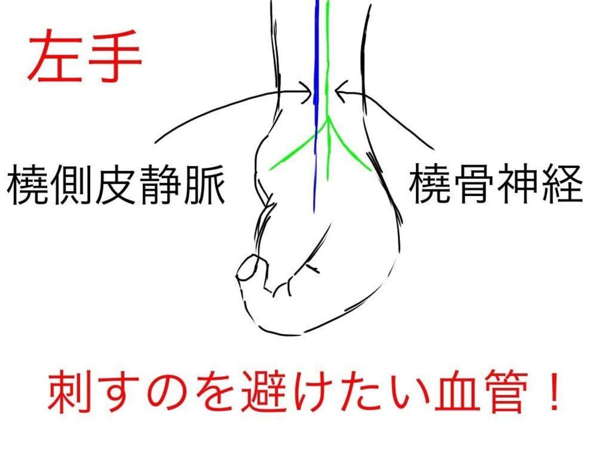 手首近くの血管(橈側皮静脈)は怒張していることが多く、点滴をしたくなります。しかしそこは採血・点滴を避けるべき神経損傷のリスクのある穿刺部位
