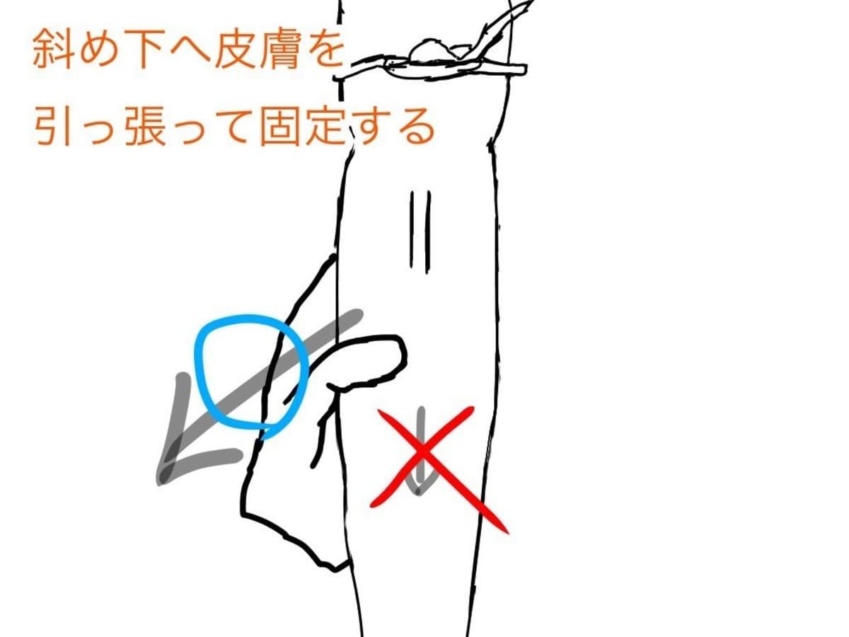 皮膚を引っ張って血管を固定する