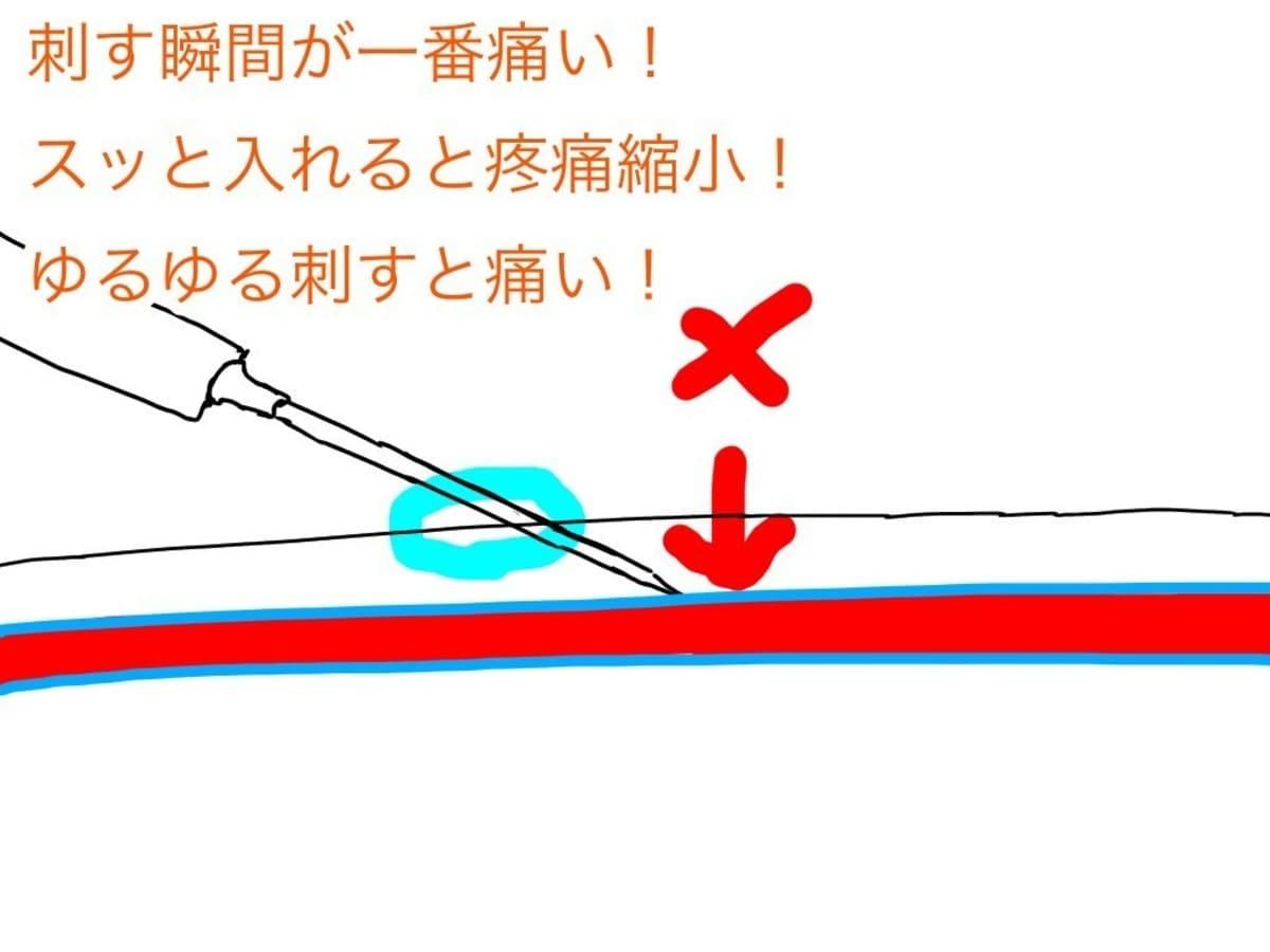 点滴留置針内への逆血を確認して留置針を血管内へ進める
