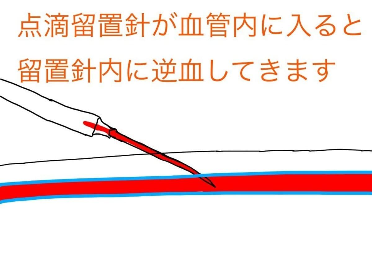 留置針が血管内へしっかり入っていれば、留置針内に血液が逆流してきます。