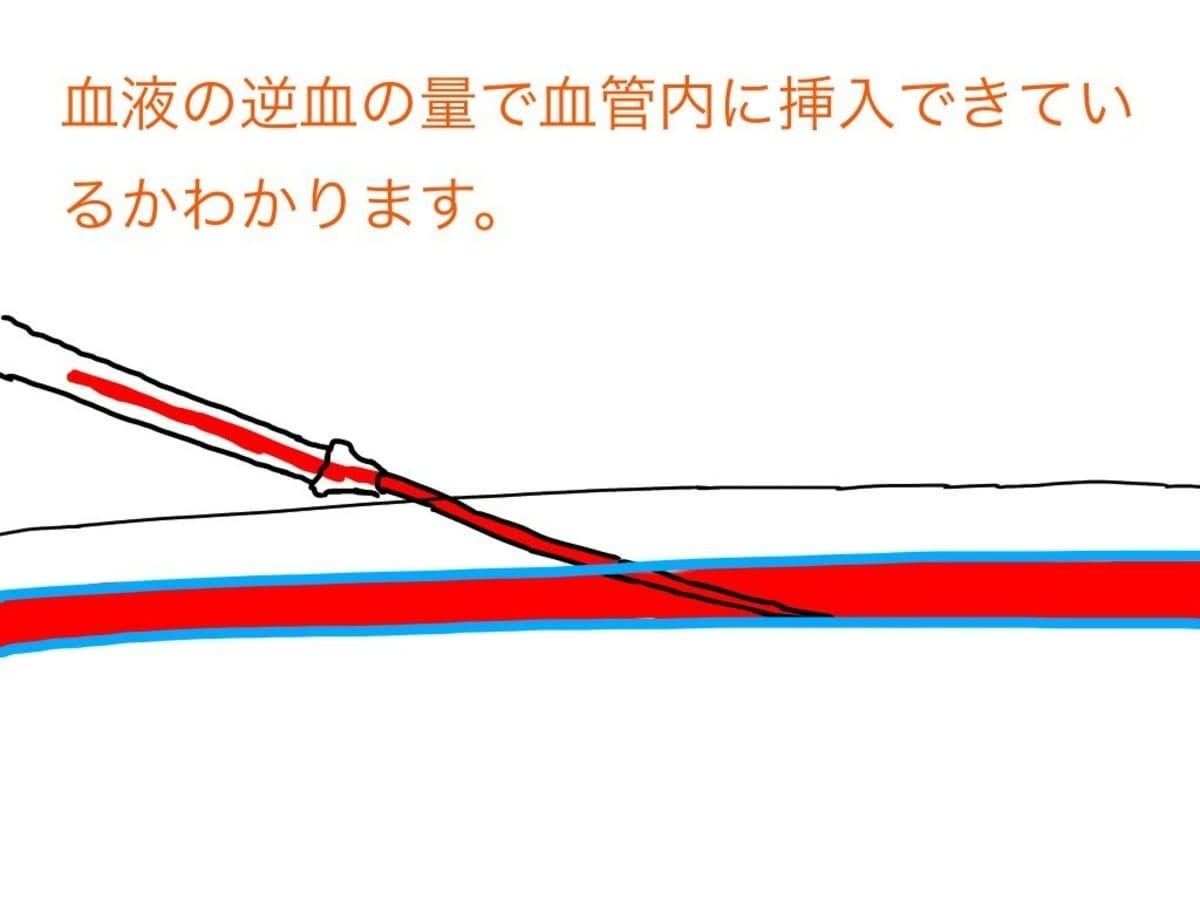 点滴留置針内に逆血してくる血液の量で血管内に留置針がしっかりと挿入できているかわかります。