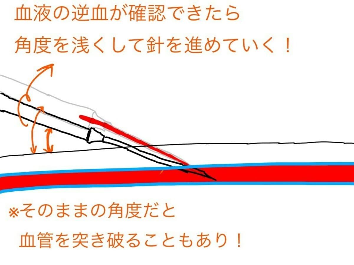 点滴留置針内に逆血があれば、血管に入ったサインですので、針の角度を浅くしてより、奥に挿入していきます。