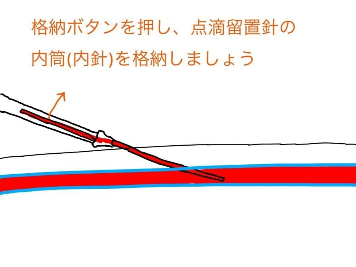駆血帯を外し、点滴留置針の内筒を格納して、点滴留置針の外筒を血管内へ留置