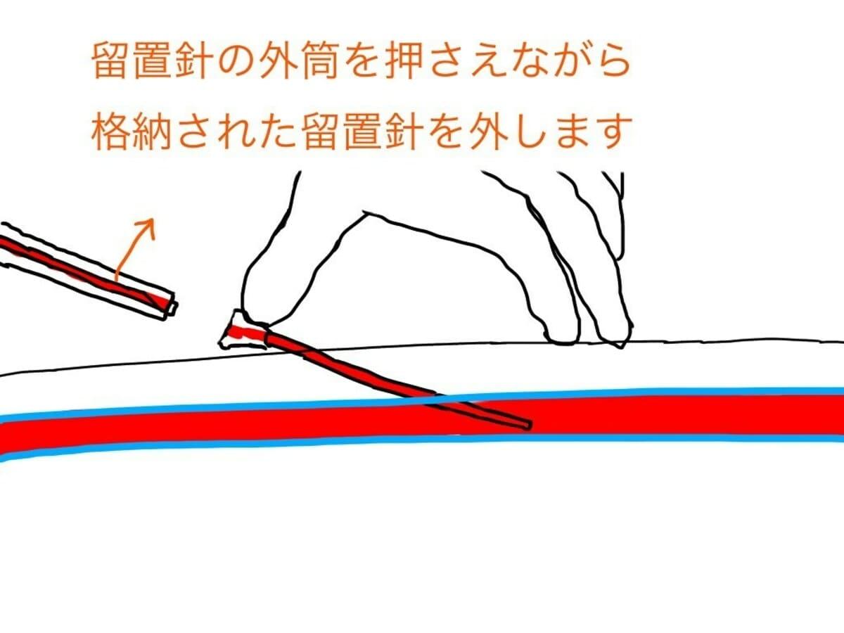 駆血帯を外し、内筒と外筒を分離する。