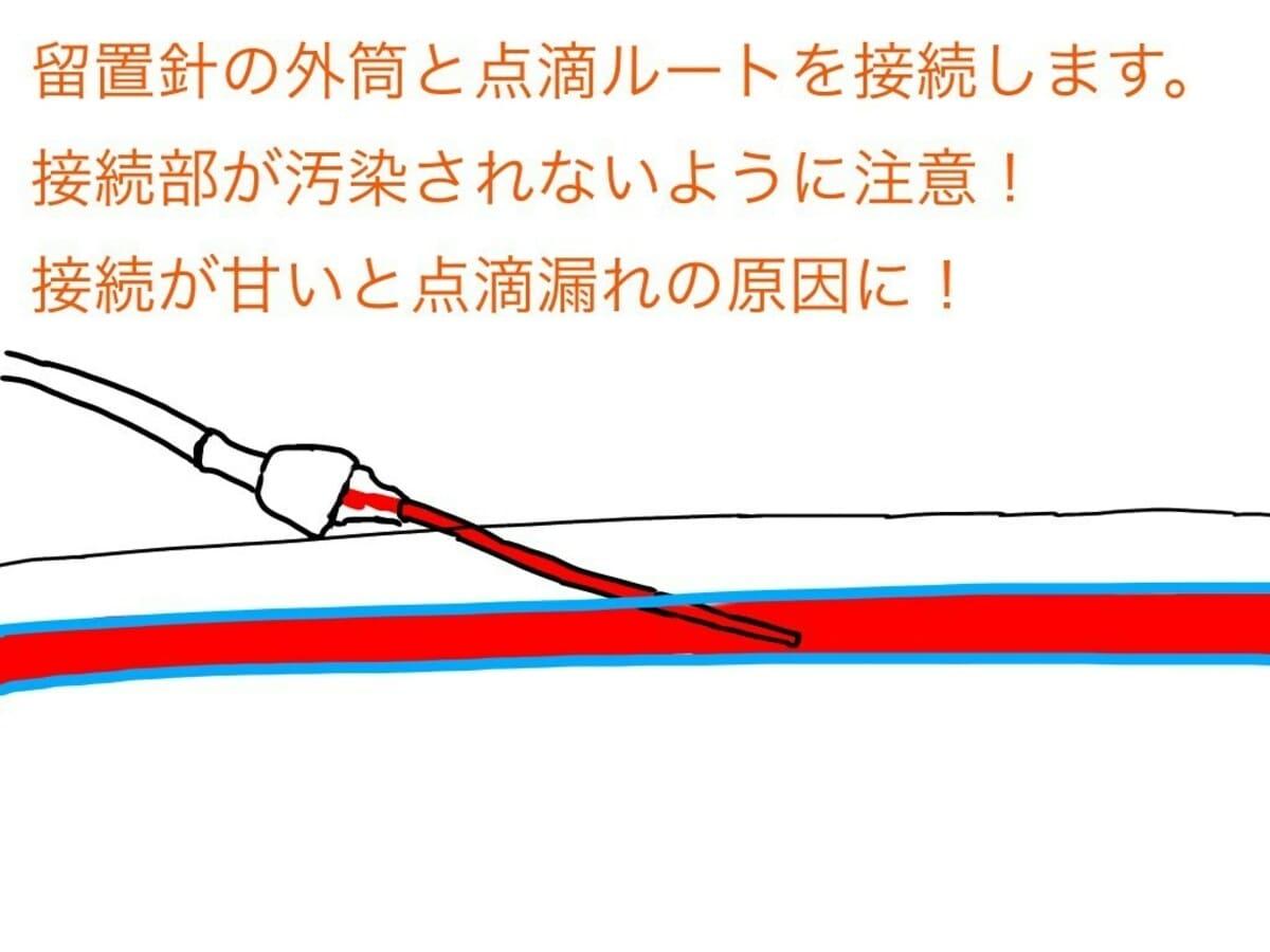 点滴ルートと留置針外筒を接続する。